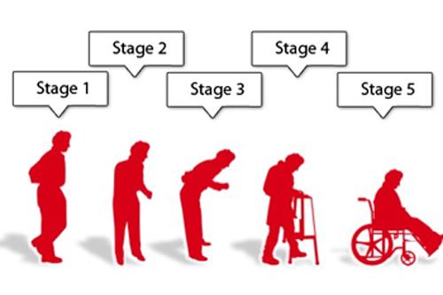 مراحل پارکینسون