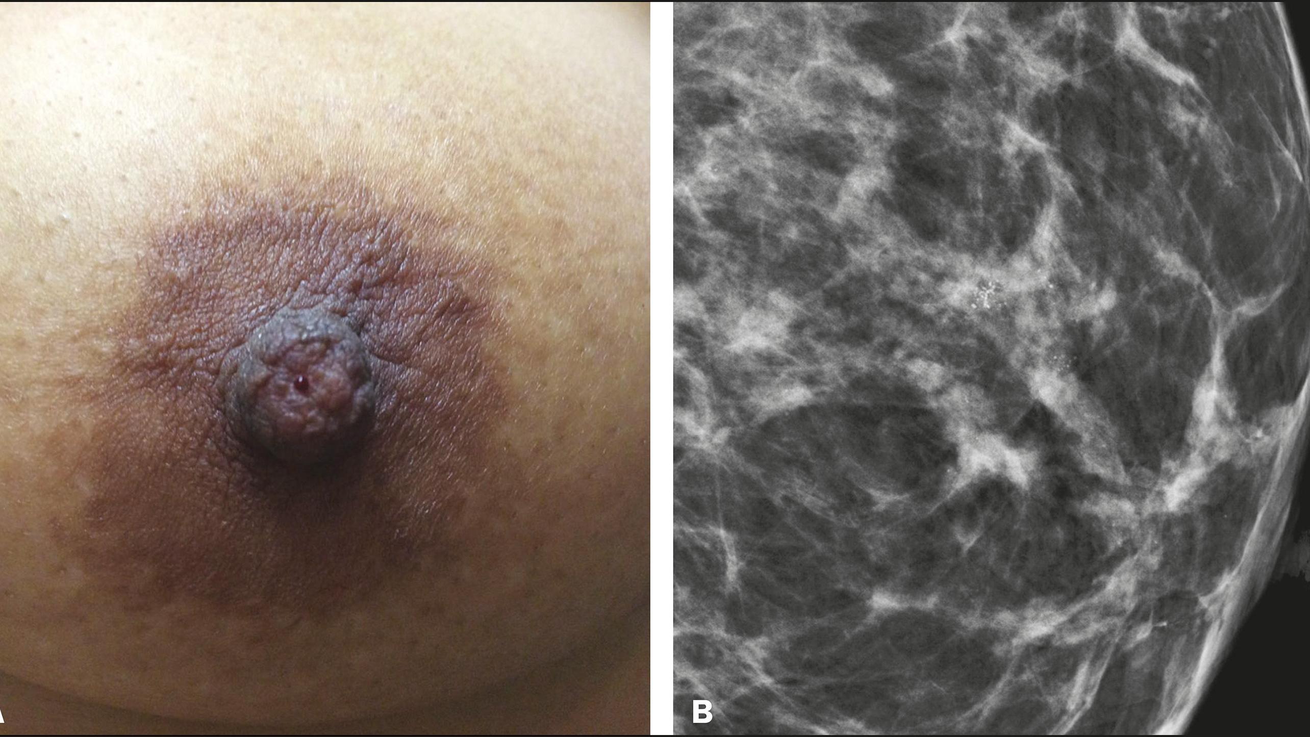 علایم سرطان سینه