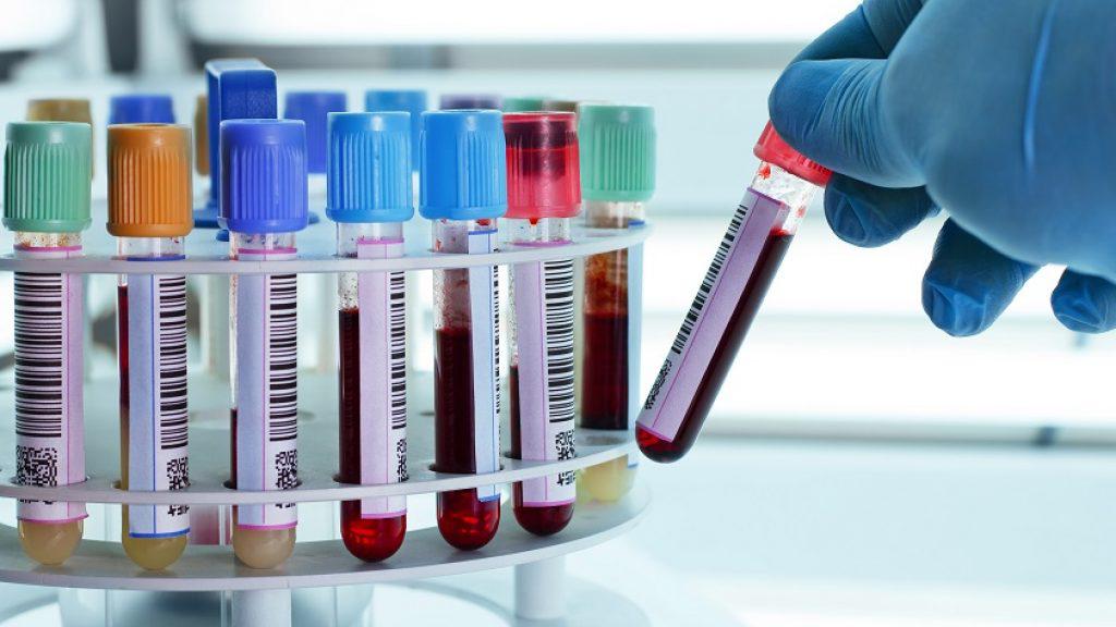 آزمایش تشخیص گروه خونی